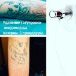 Удаление татуировок неодимовым лазером