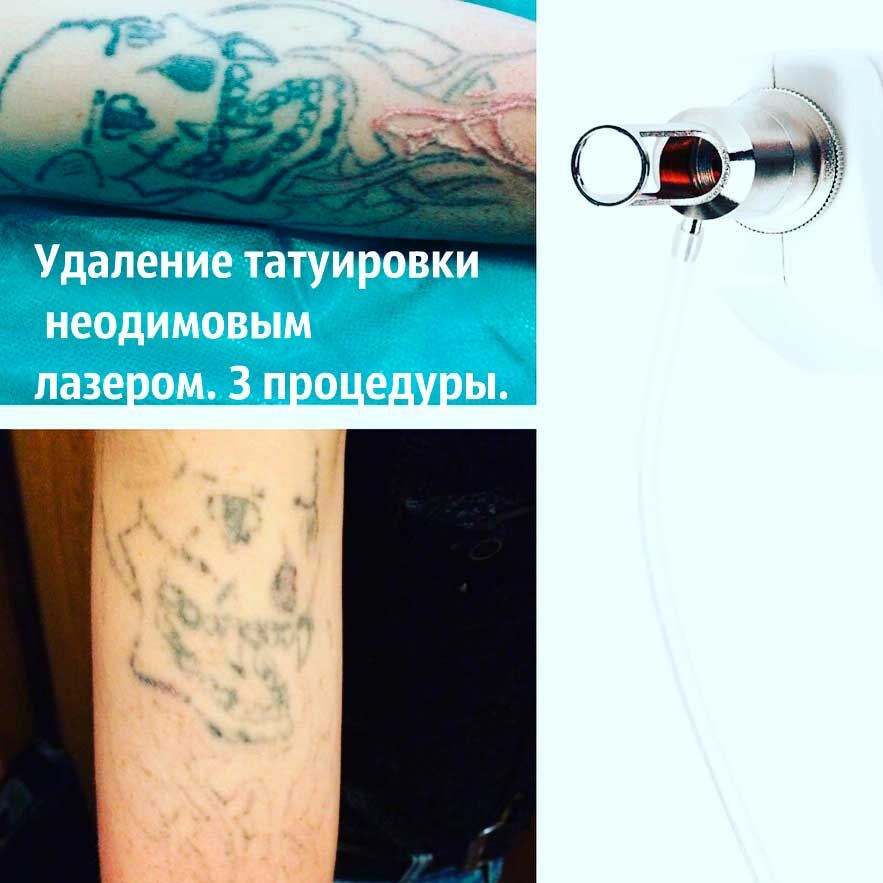 Цены и стоимость на татуировки тату в Москве Узнайте